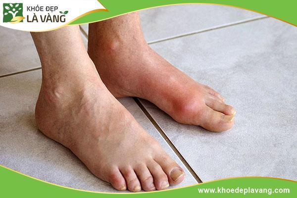Nguyên nhân gây bệnh Gout và cách điều trị