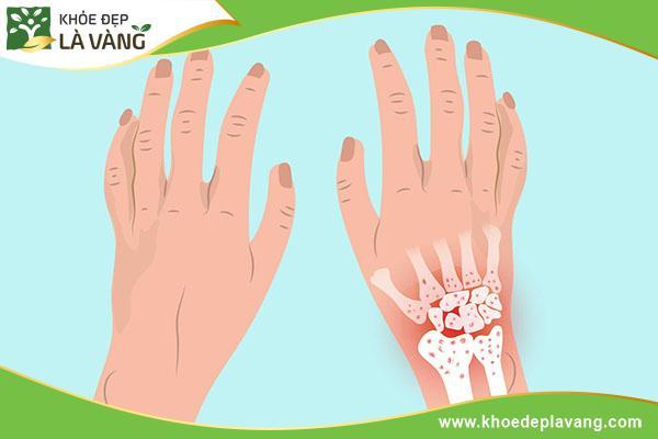 Tìm hiểu về bệnh thoái hóa khớp cổ tay