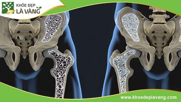 10 thói quen xấu gây ra bệnh loãng xương