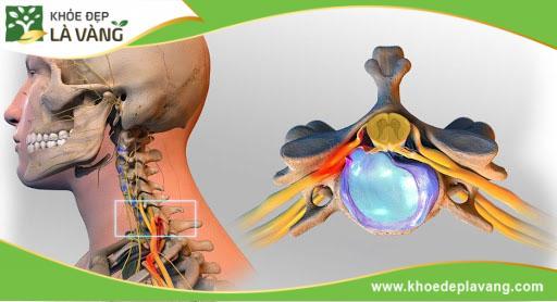 Nguyên nhân gây đau cổ vai gáy và cách điều trị